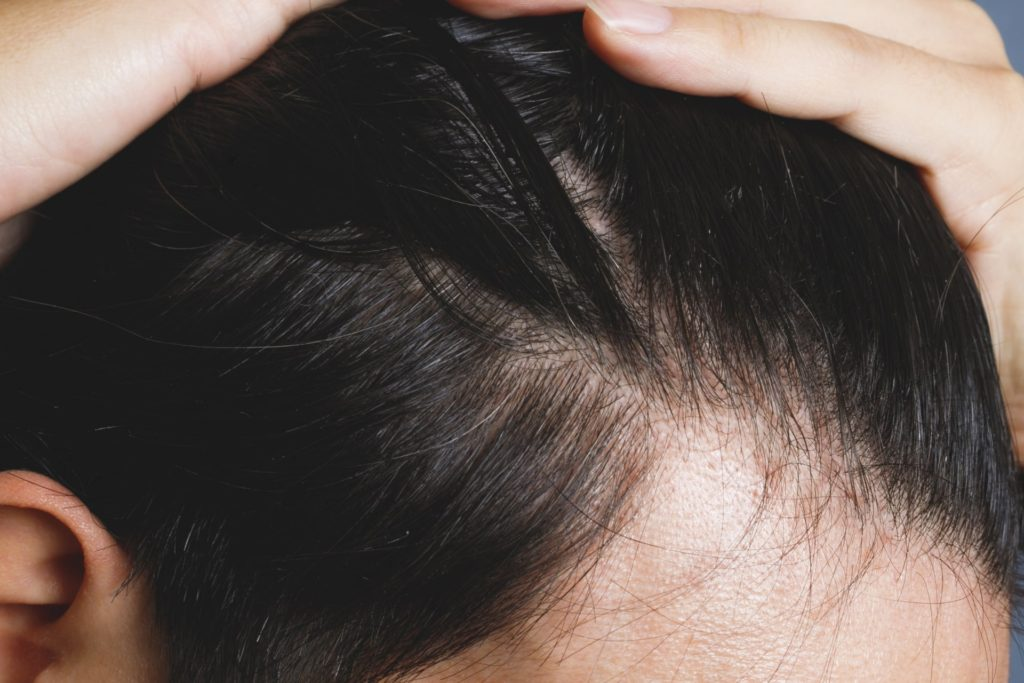 抜け毛、薄毛の原因